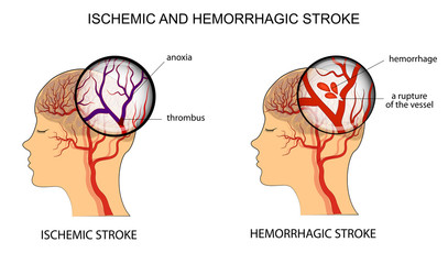 Graphic showing the difference between ischemic stroke and hemorrhagic stroke